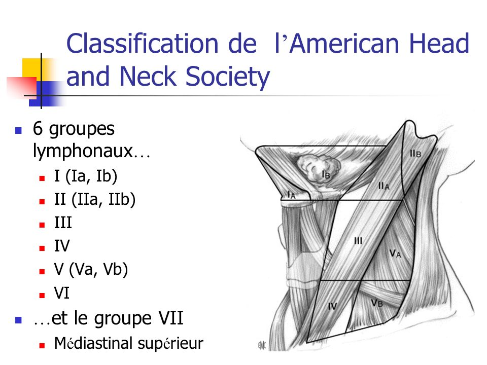 Classification de l'American Head and Neck Society