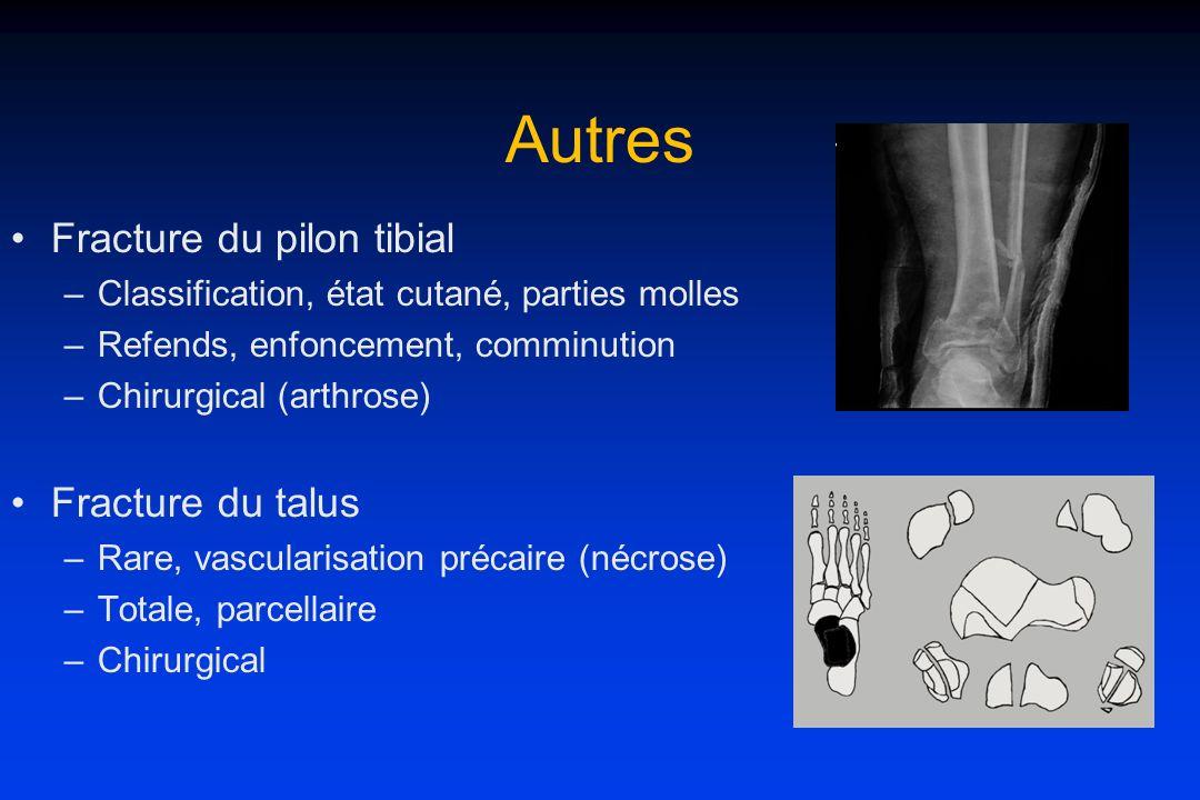 Autres Fracture du pilon tibial Fracture du talus