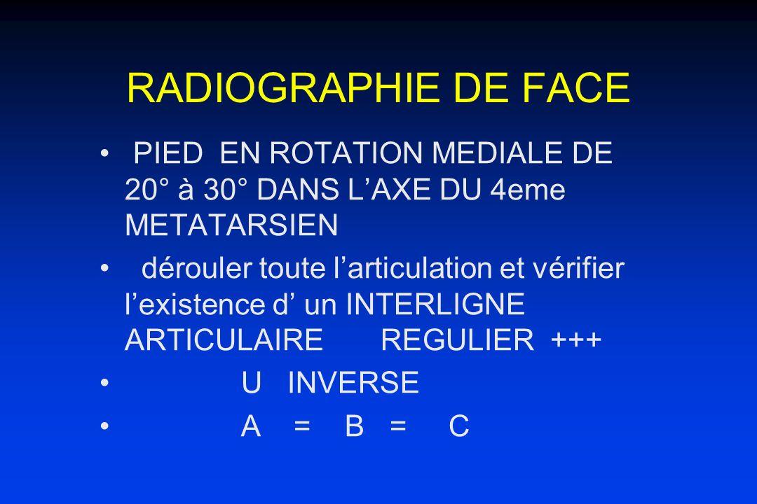 RADIOGRAPHIE DE FACE PIED EN ROTATION MEDIALE DE 20° à 30° DANS L'AXE DU 4eme METATARSIEN.
