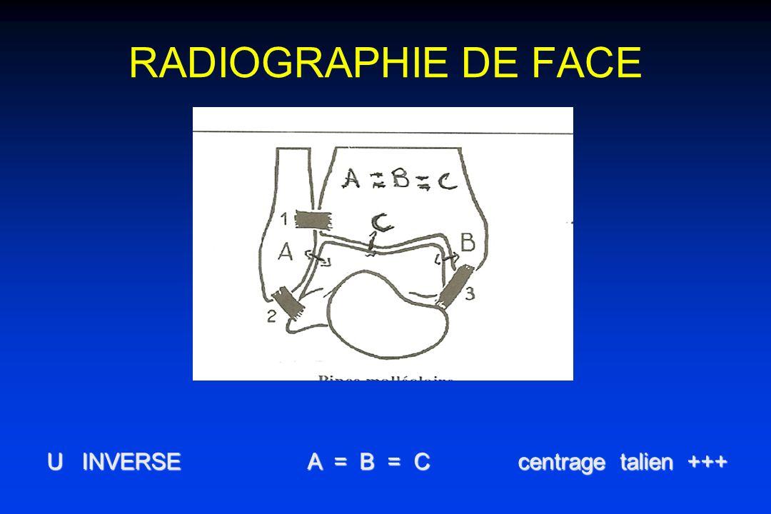 RADIOGRAPHIE DE FACE U INVERSE A = B = C centrage talien +++