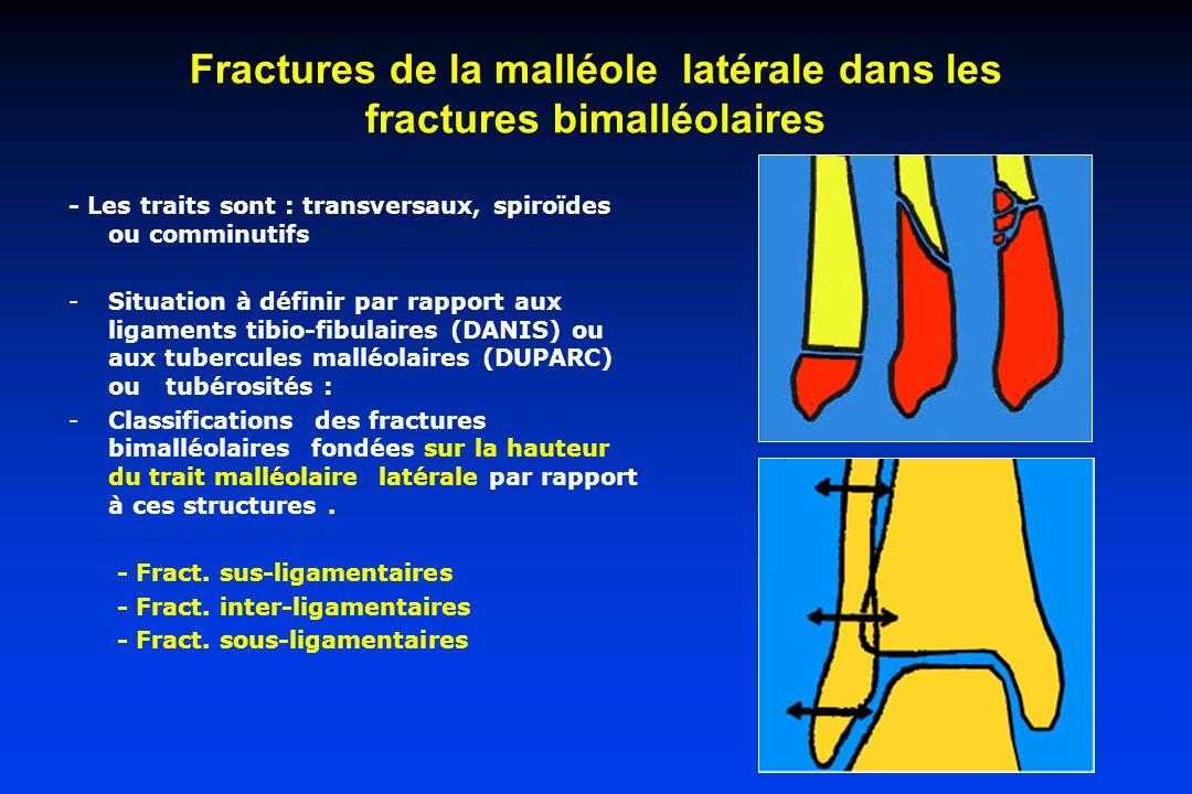 Fractures de la malléole latérale dans les fractures bimalléolaires