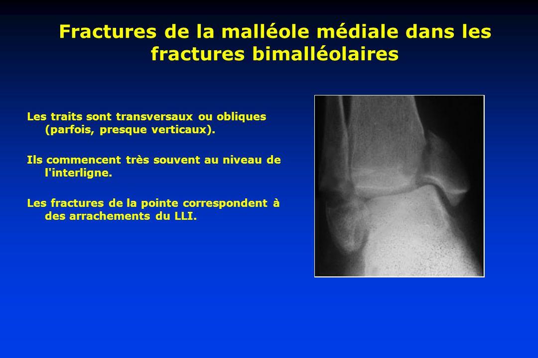 Fractures de la malléole médiale dans les fractures bimalléolaires