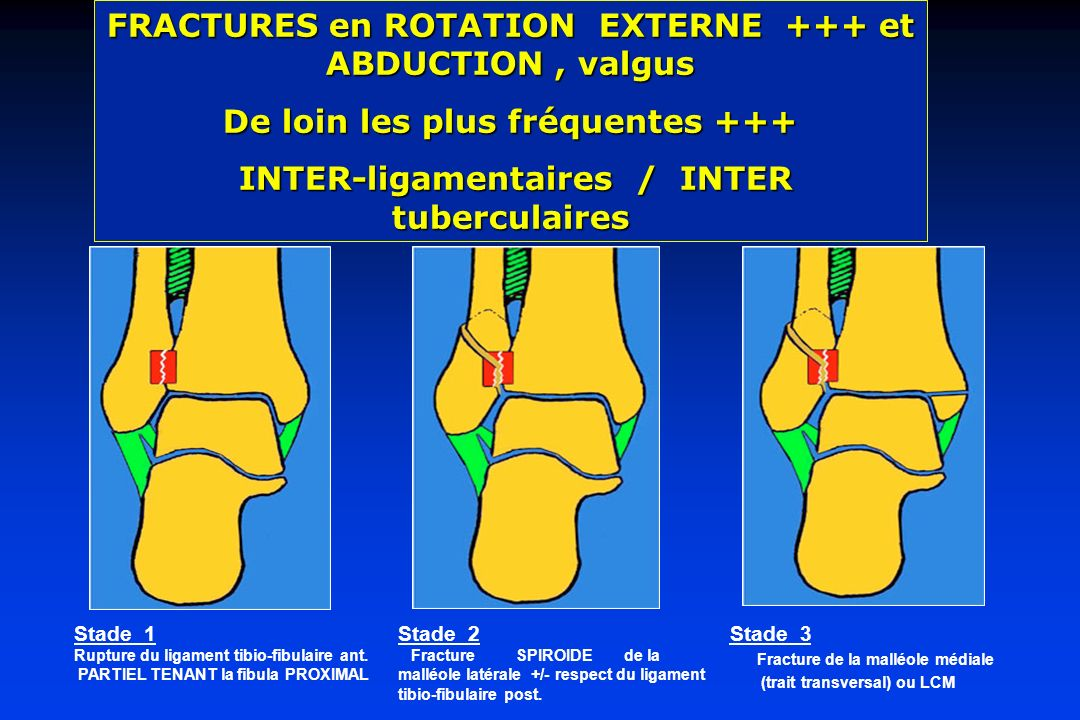 FRACTURES en ROTATION EXTERNE +++ et ABDUCTION , valgus