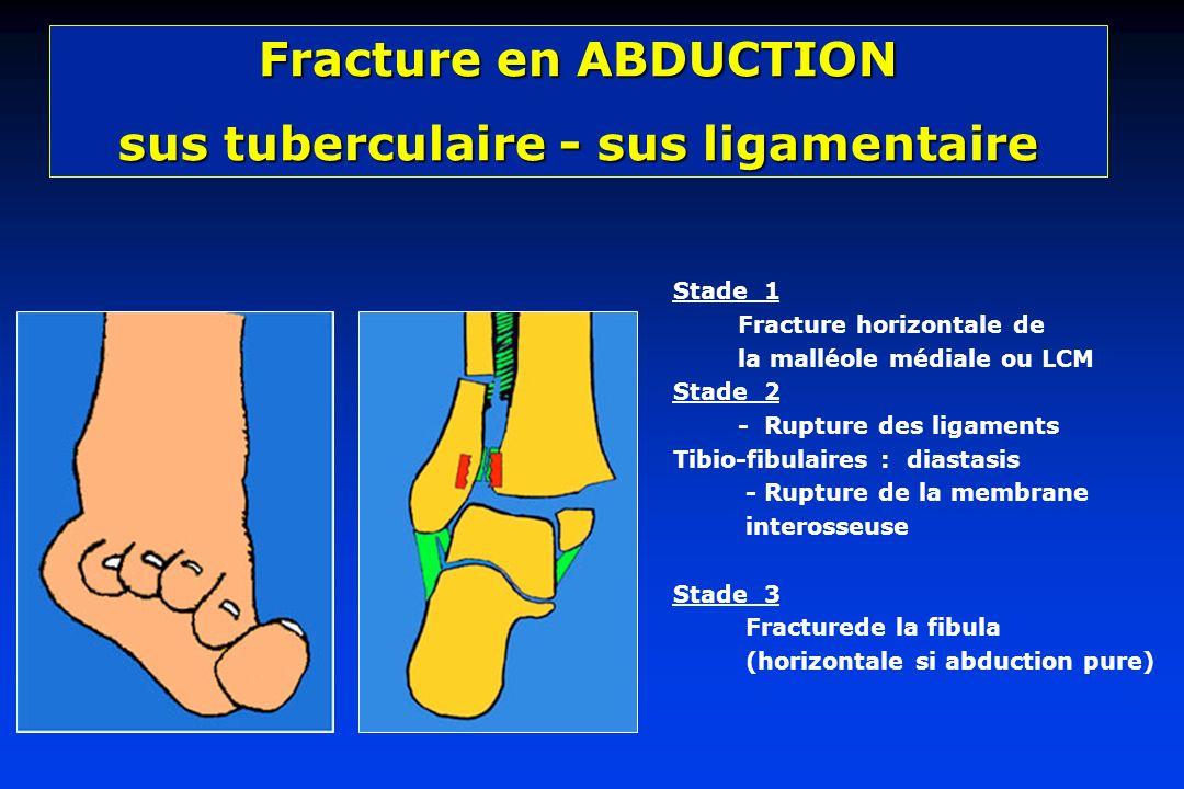 sus tuberculaire - sus ligamentaire