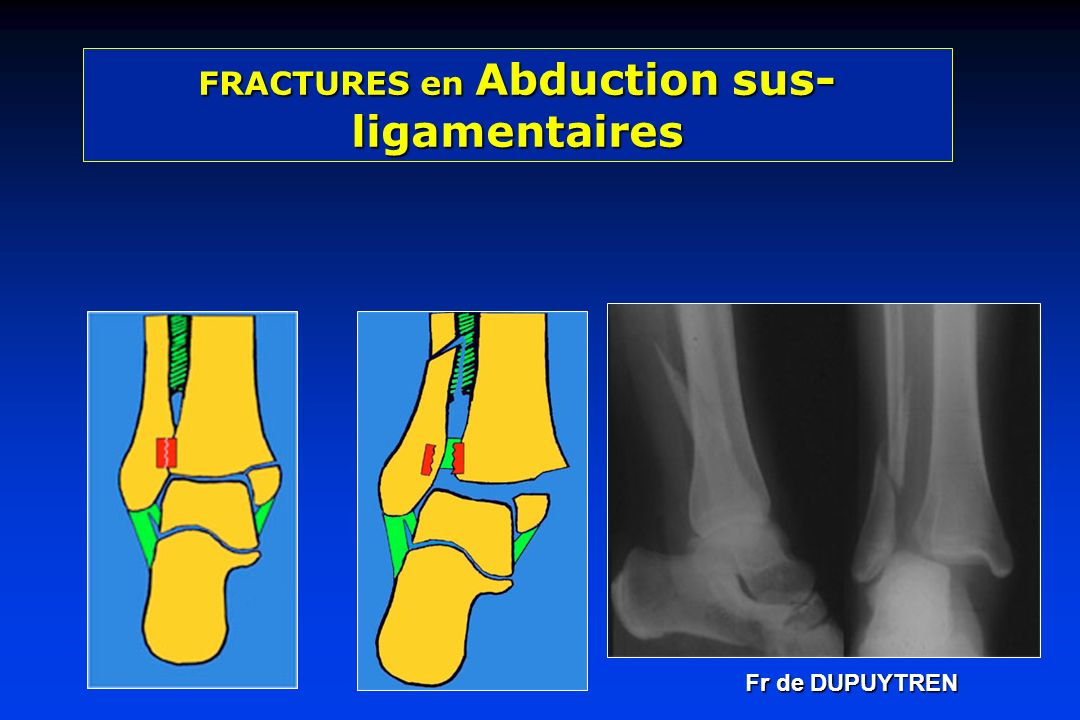 FRACTURES en Abduction sus-ligamentaires