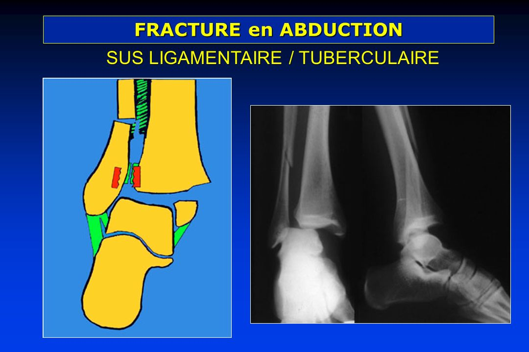 FRACTURE en ABDUCTION SUS LIGAMENTAIRE / TUBERCULAIRE