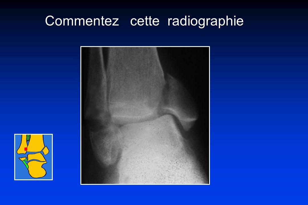 Commentez cette radiographie