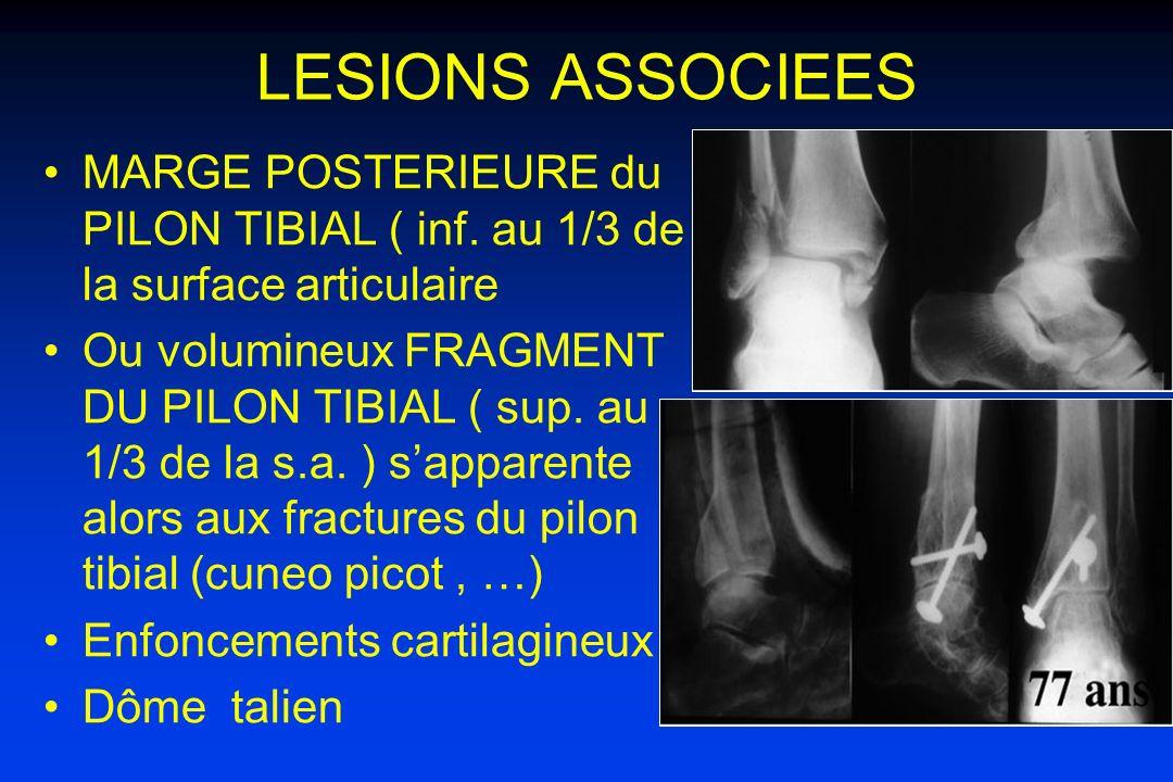 LESIONS ASSOCIEES MARGE POSTERIEURE du PILON TIBIAL ( inf. au 1/3 de la surface articulaire.