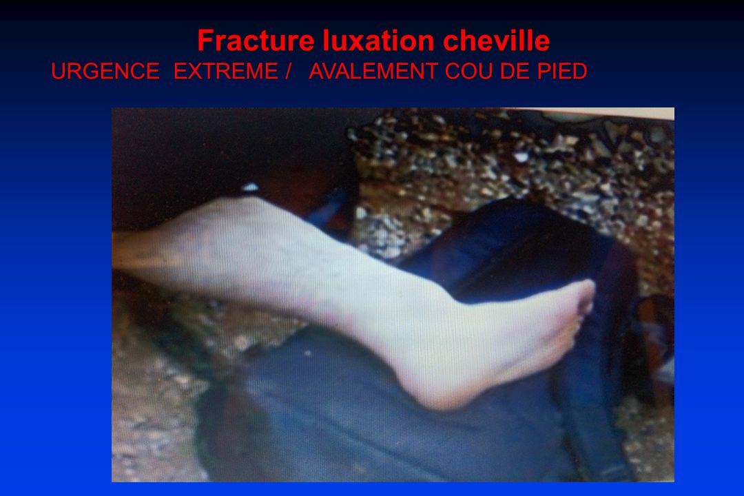 Fracture luxation cheville URGENCE EXTREME / AVALEMENT COU DE PIED