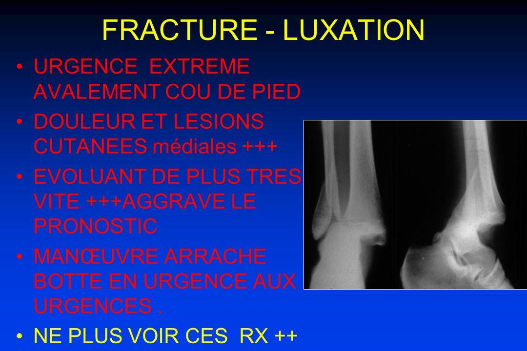 FRACTURE - LUXATION URGENCE EXTREME AVALEMENT COU DE PIED