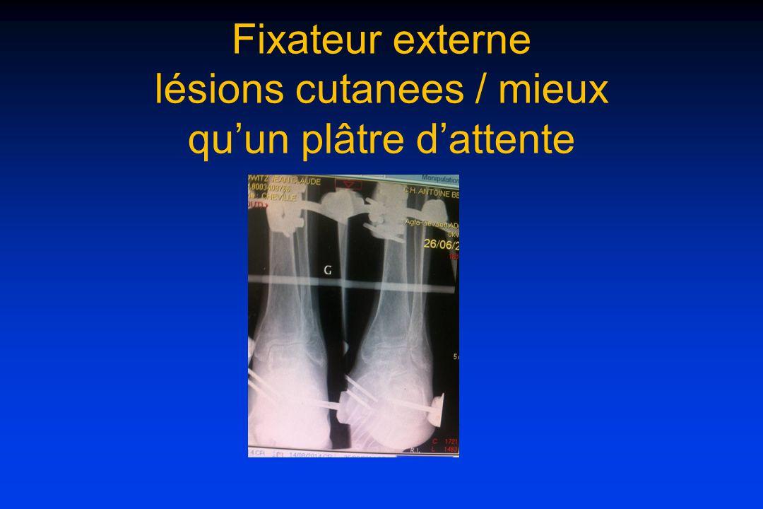 Fixateur externe lésions cutanees / mieux qu'un plâtre d'attente