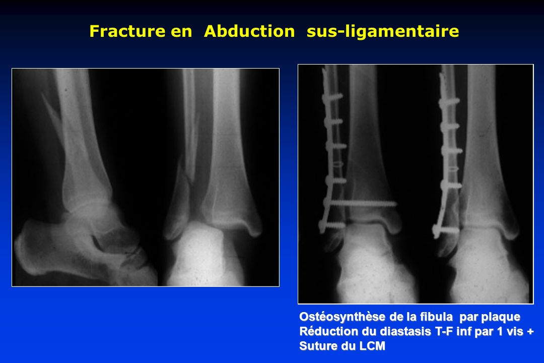 Fracture en Abduction sus-ligamentaire