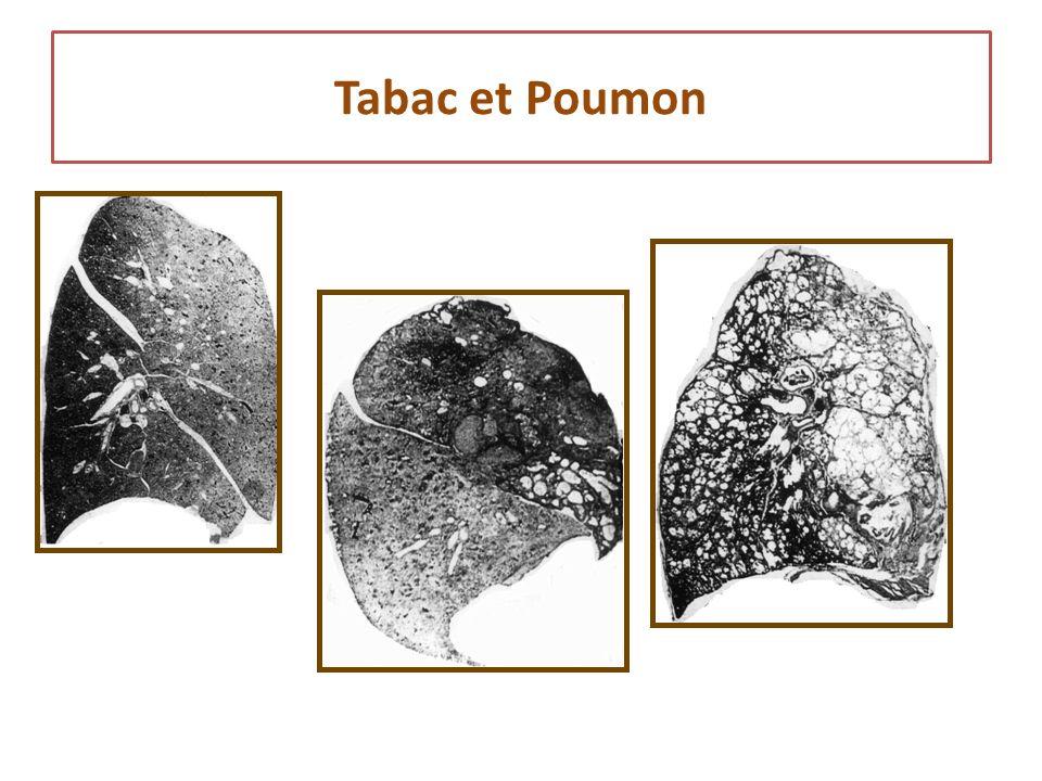 Tabac et Poumon