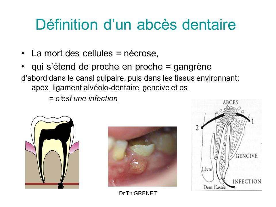 Définition d'un abcès dentaire
