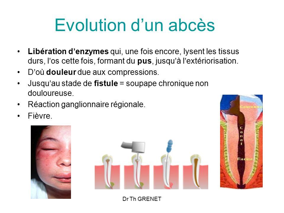 Evolution d'un abcès Libération d'enzymes qui, une fois encore, lysent les tissus durs, l'os cette fois, formant du pus, jusqu'à l'extériorisation.