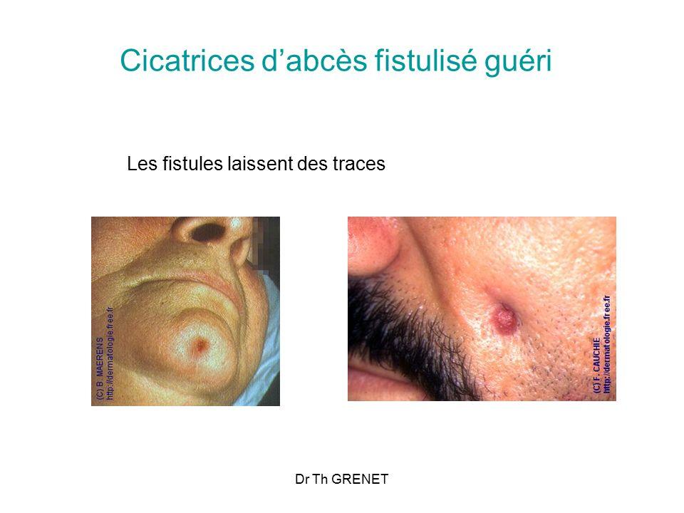 Cicatrices d'abcès fistulisé guéri