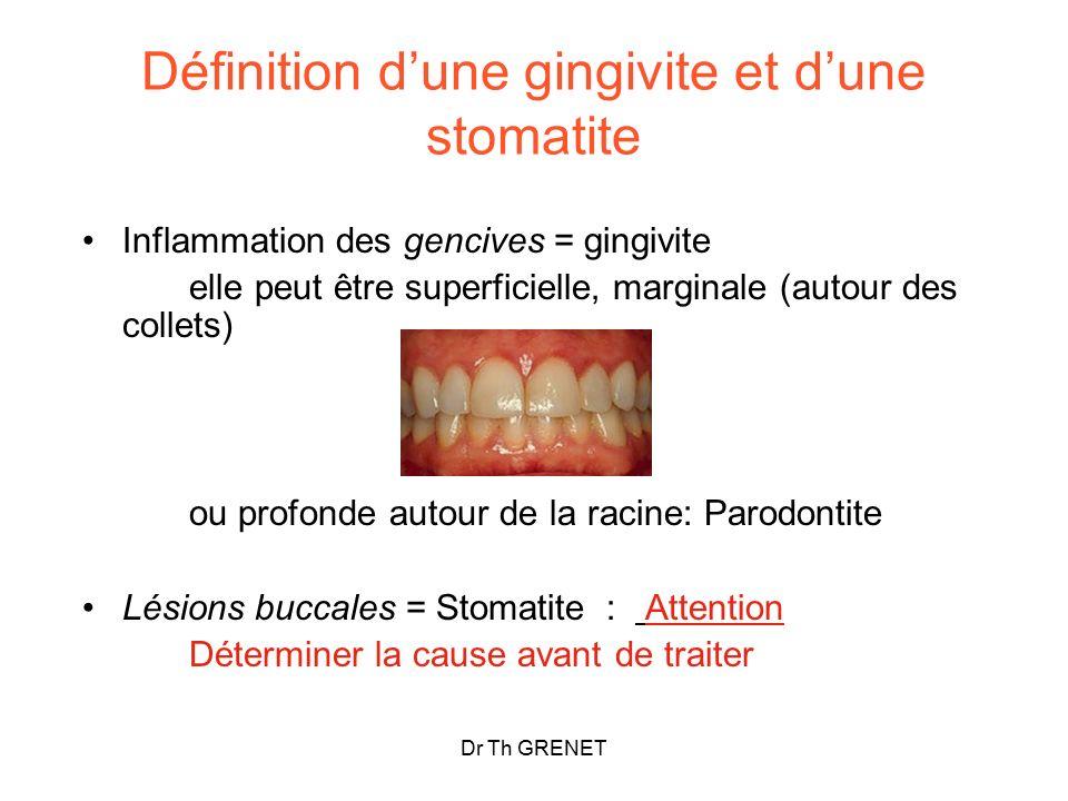 Définition d'une gingivite et d'une stomatite