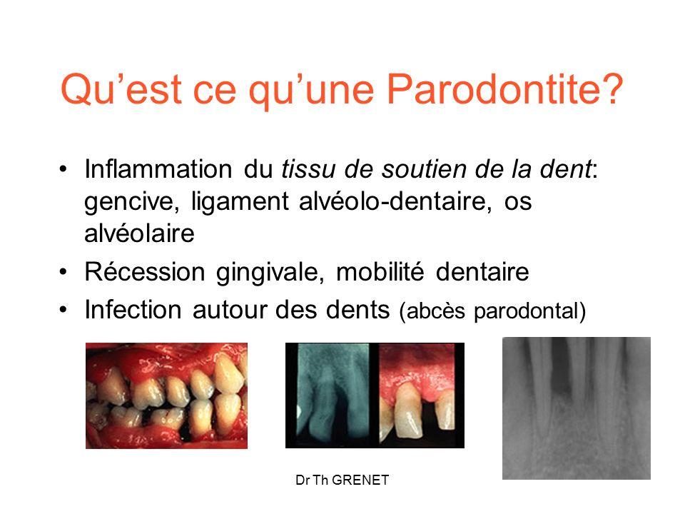 Qu'est ce qu'une Parodontite