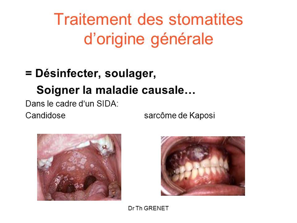 Traitement des stomatites d'origine générale