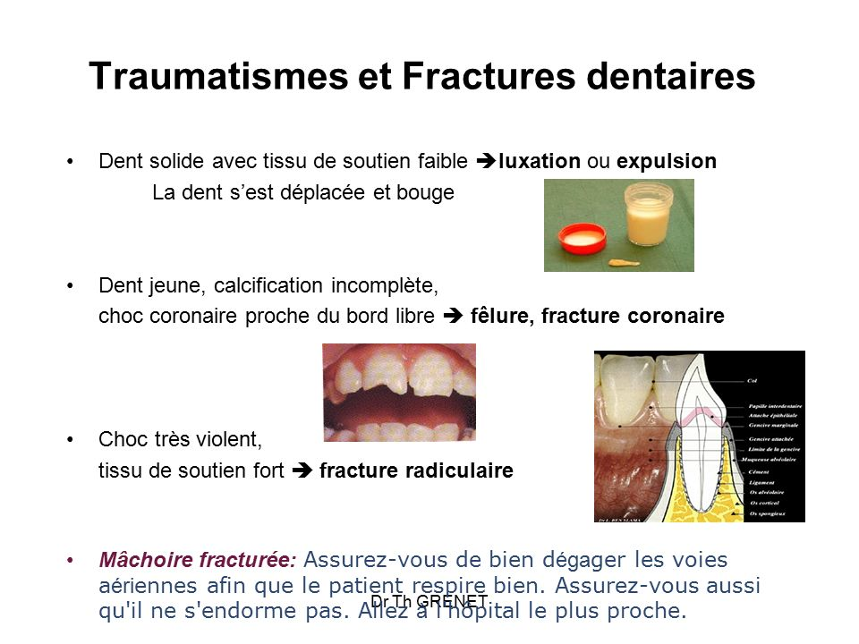 Traumatismes et Fractures dentaires