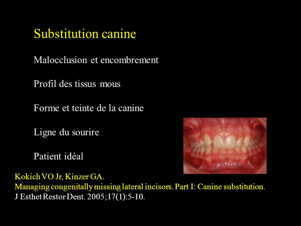 Substitution canine Malocclusion et encombrement