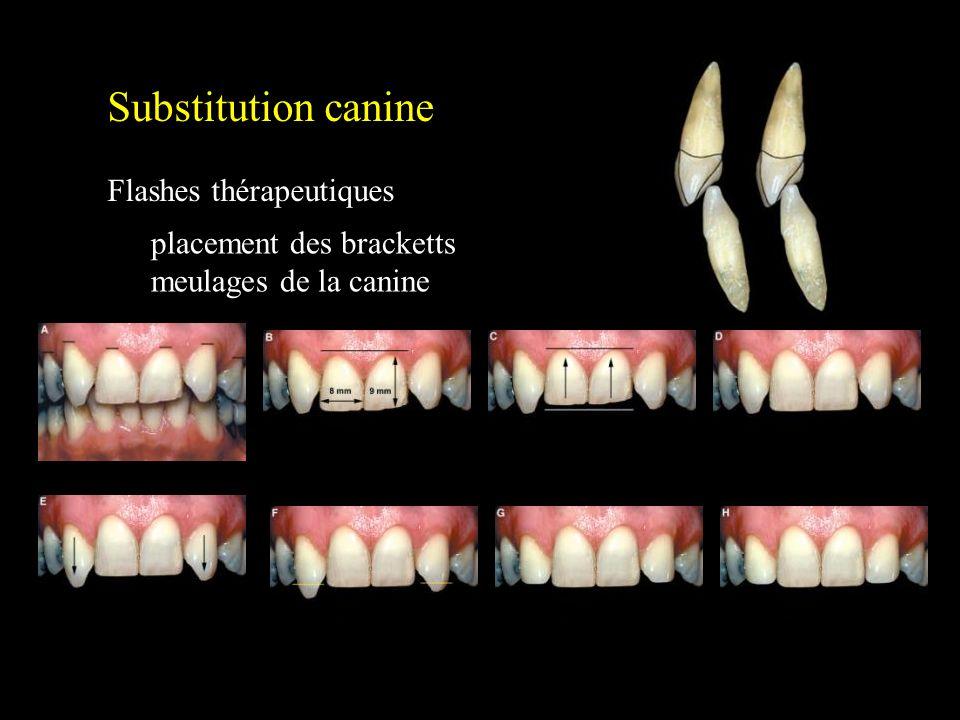 Substitution canine Flashes thérapeutiques Patient idéal