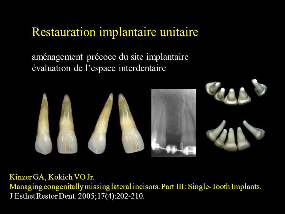 Restauration implantaire unitaire