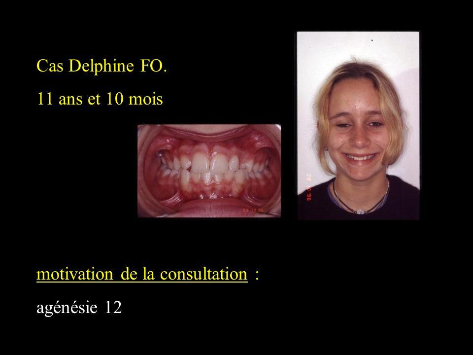 Cas Delphine FO. 11 ans et 10 mois motivation de la consultation : agénésie 12