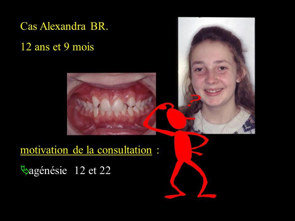 Cas Alexandra BR. 12 ans et 9 mois motivation de la consultation : agénésie 12 et 22