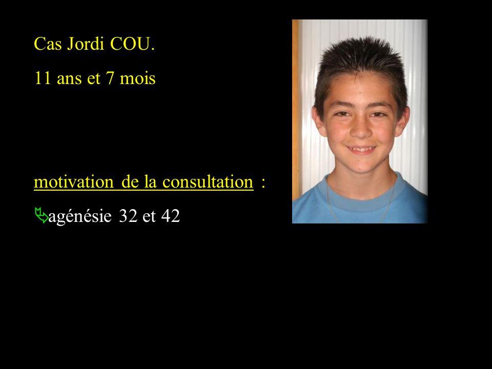 Cas Jordi COU. 11 ans et 7 mois motivation de la consultation : agénésie 32 et 42