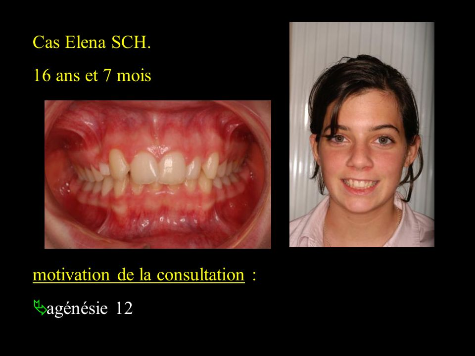 Cas Elena SCH. 16 ans et 7 mois motivation de la consultation : agénésie 12