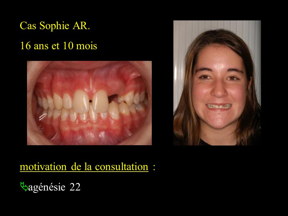 Cas Sophie AR. 16 ans et 10 mois motivation de la consultation : agénésie 22