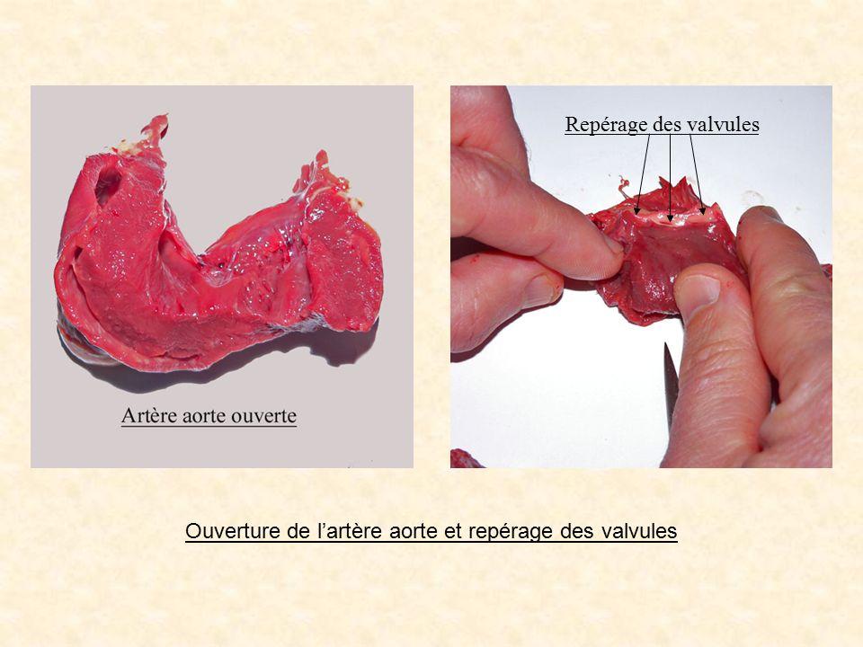 Ouverture de l'artère aorte et repérage des valvules