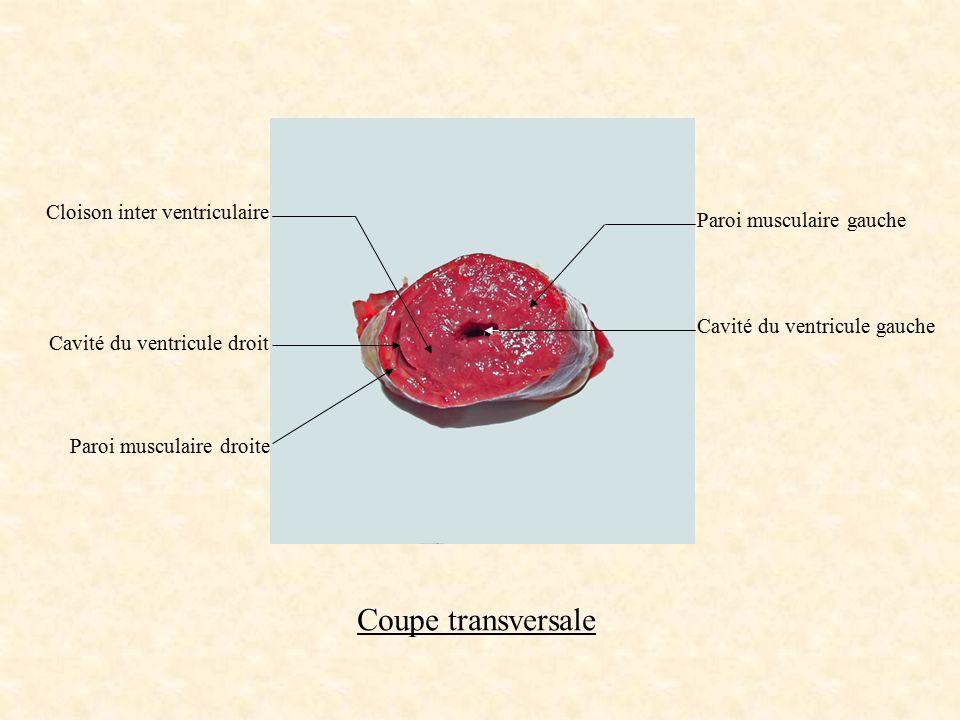Coupe transversale Cloison inter ventriculaire Paroi musculaire gauche