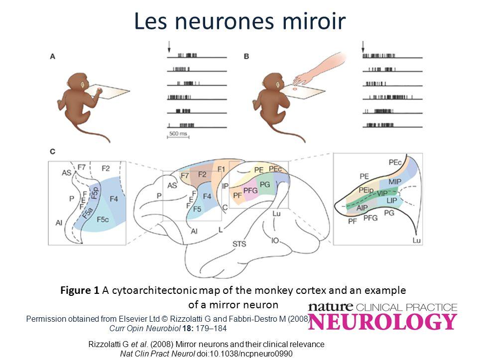 Catherine belzung institut universitaire de france ppt for Neurone miroir autisme