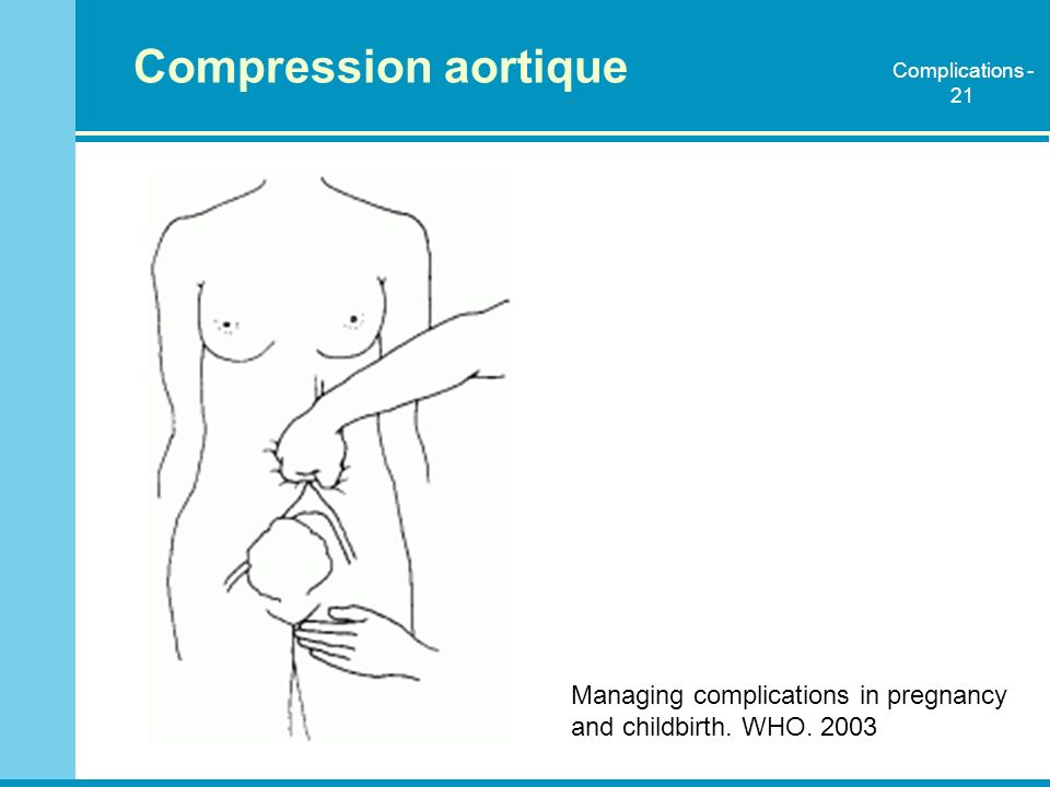 Compression aortique Complications - 21. Expliquer comment appliquer la compression aortique: