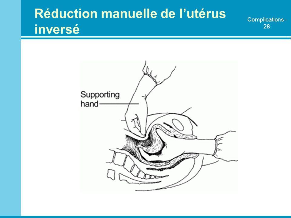 Réduction manuelle de l'utérus inversé