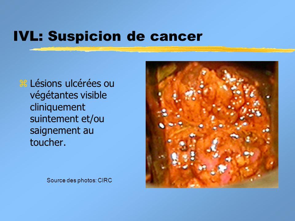 IVL: Suspicion de cancer