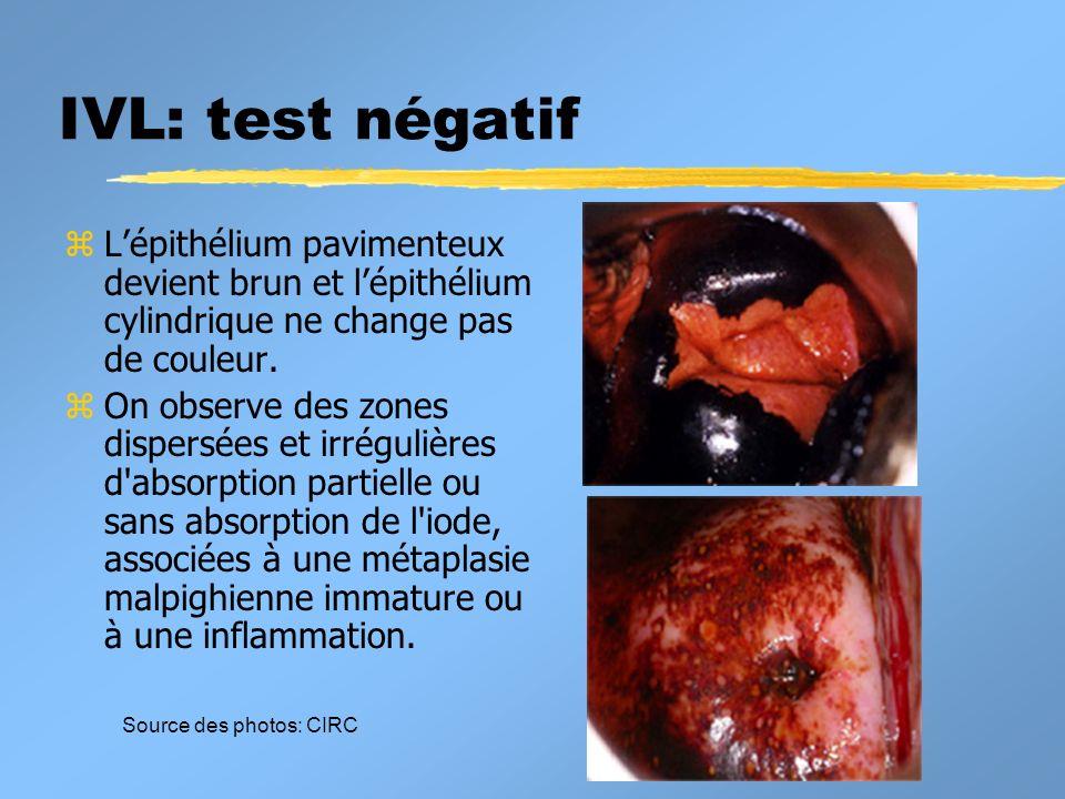 IVL: test négatifL'épithélium pavimenteux devient brun et l'épithélium cylindrique ne change pas de couleur.