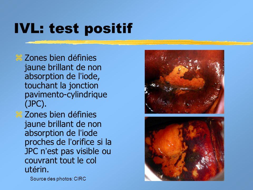 IVL: test positifZones bien définies jaune brillant de non absorption de l'iode, touchant la jonction pavimento-cylindrique (JPC).