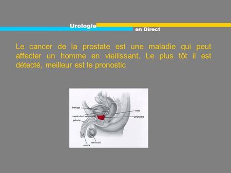 Douleur aux mamelons des seins