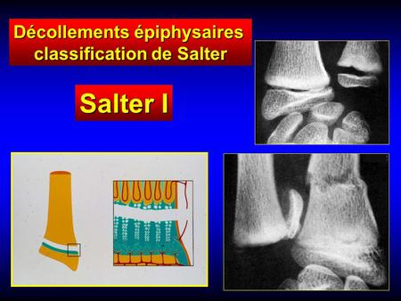 Salter I Décollements épiphysaires classification de Salter.