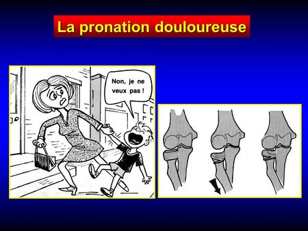 La pronation douloureuse