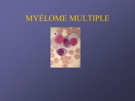 MYÉLOME MULTIPLE.
