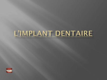 allergie titane implant dentaire
