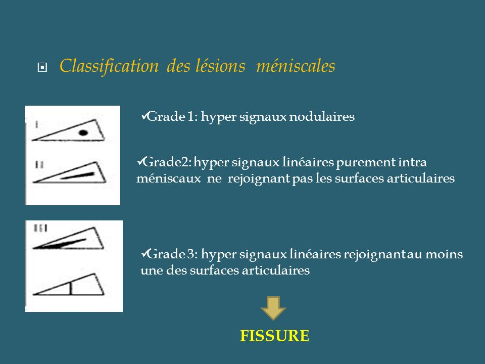 Classification des lésions méniscales