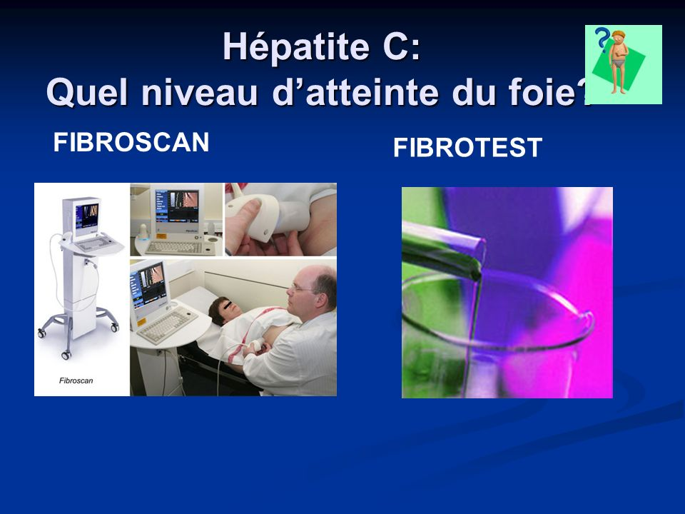 Patients co infectés VIH + Hépatite C - ppt video online télécharger