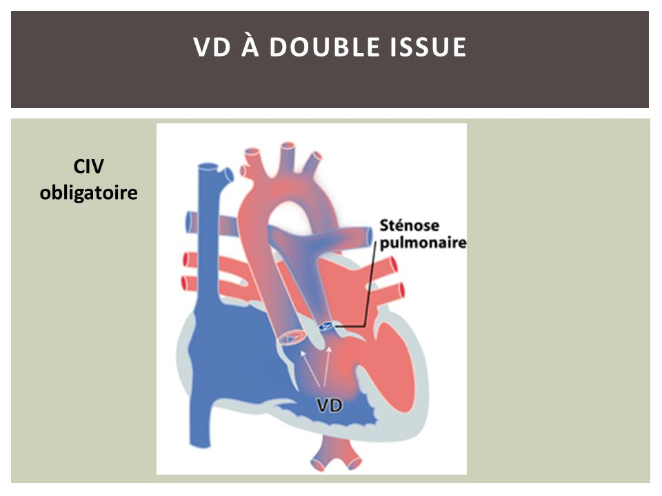 VD à double issue CIV obligatoire