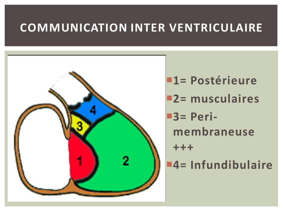 Communication inter Ventriculaire