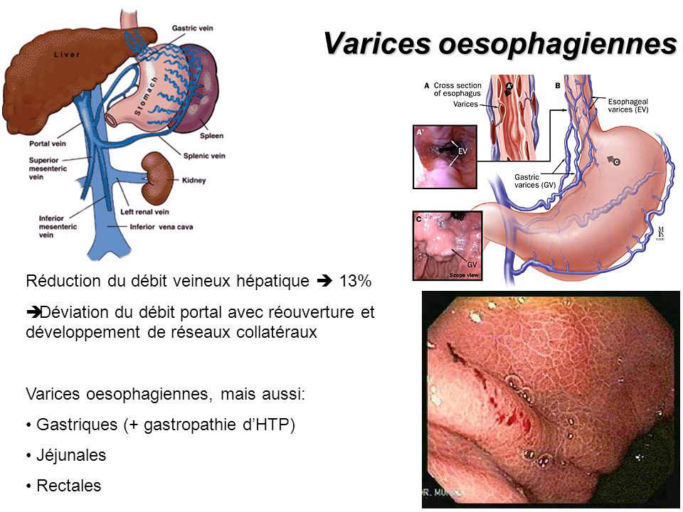 Varices oesophagiennes